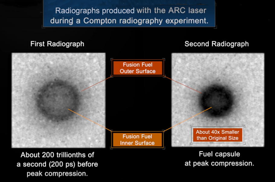 ARC Radiographic Images of a NIF Implosion